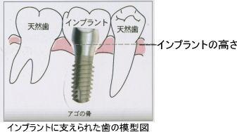歯の模型図
